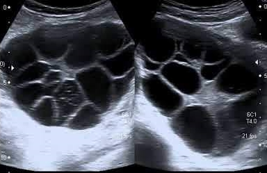 Ultrasound image of Theca lutein cysts.